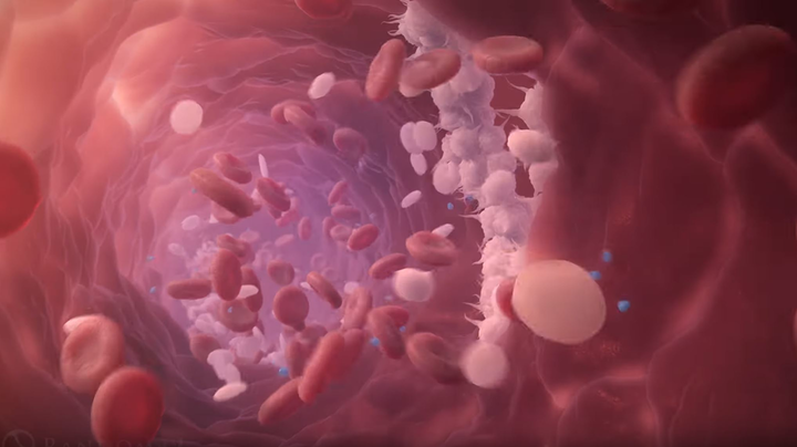 Study ties stroke-related brain blood vessel abnormality ...